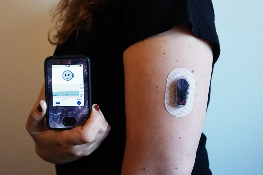 Dexcom G6 Sticker